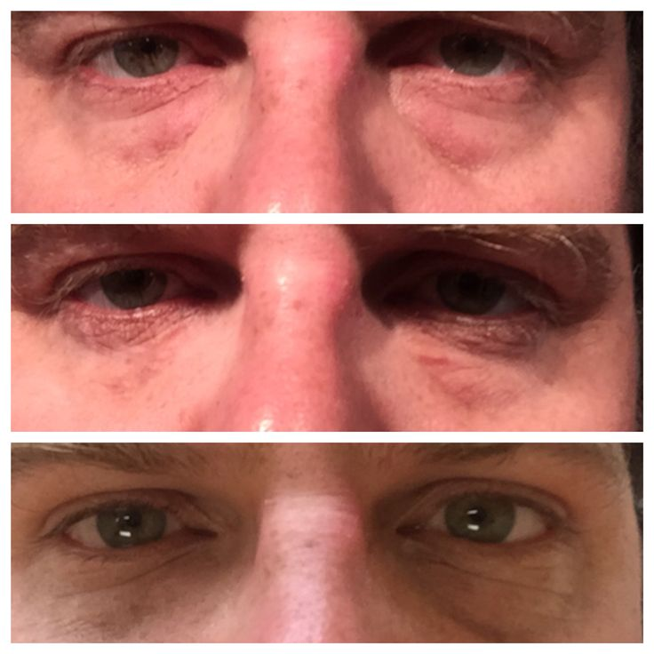 Using #InstantlyAgeless to remove puffiness and fine lines.