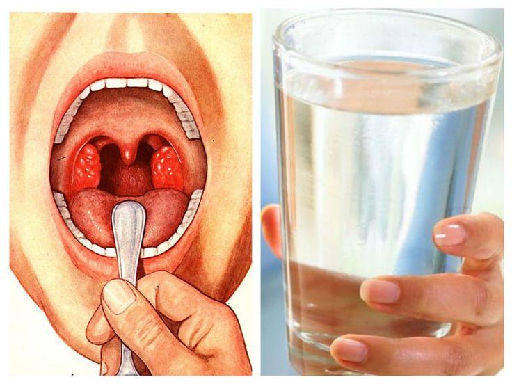 A legkönnyebb módszer, amivel kezelheted a mandulagyulladást!