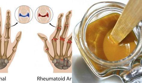 rimedio-artrite100 grammi di miele di buona qualità; 1 cucchiaio di curcuma in polvere. PREPARAZIONE  Mescolare gli ingredienti e conservare il composto in un recipiente di vetro pulito, con coperchio.  COME UTILIZZARE  Se volete utilizzarlo per prevenire qualsiasi tipo di problema di salute, potete prenderne un cucchiaio tre volte al giorno.  Se invece volete ridurre i dolori legati all'artrite, reumatismi o avete i primi sintomi del raffreddore:  1° Giorno. Prendete un cucchiaio ogni ora…