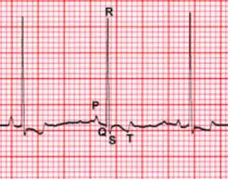 Кардиология животных, птиц, человека: Электрокардиография - важнейший метод кардиологиче...