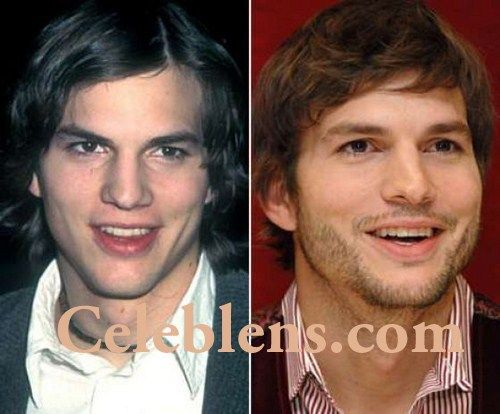 Aston Kutcher Plastic Surgery Before And After Photos