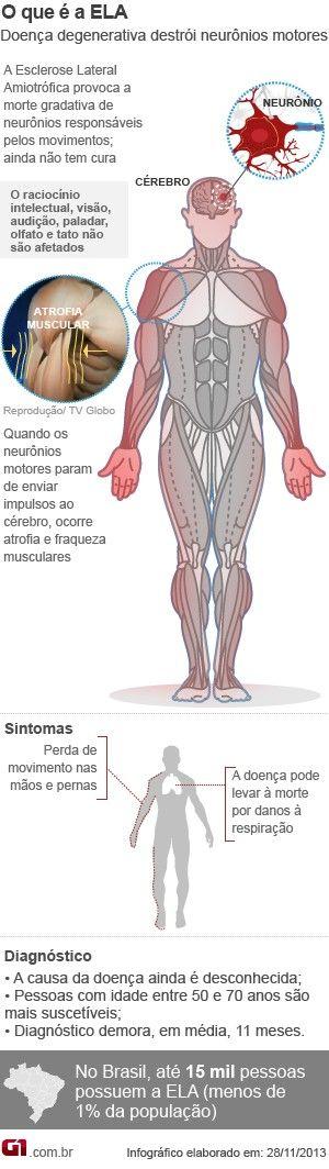 Arte esclerose (ELA) (Foto: g1)