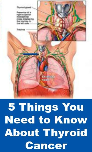5 Things You Need to Know About Thyroid Cancer  http://positivemed.com/2014/12/02/5-things-need-know-thyroid-cancer/