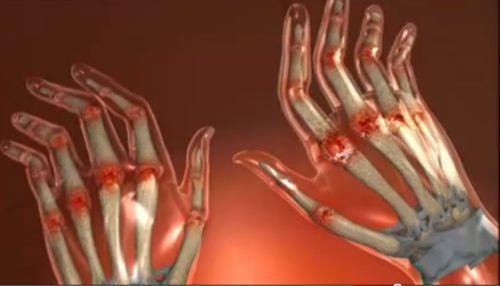 Cum sa vindeci artrita in mod simplu, acasa, fara medicamente