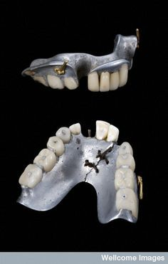 Partial upper and lower dentures, Europe, 1858-1880