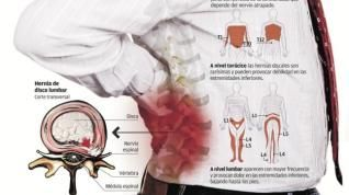 Si pueden ser los dolores en la espalda a la segunda semana del embarazo
