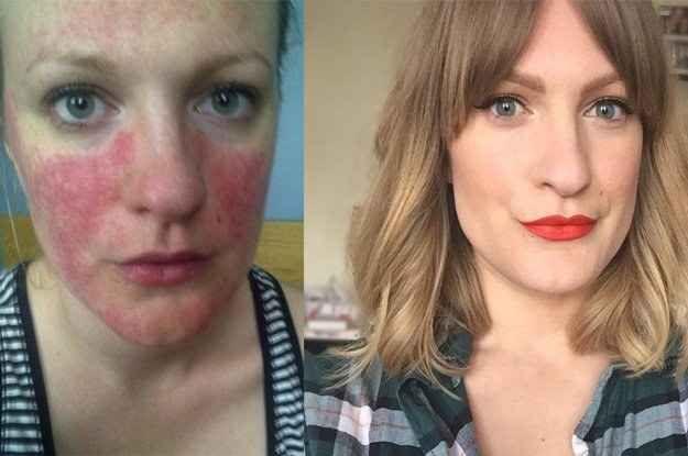 Sou a Lex Gillies. Sou uma blogueira de beleza e tenho rosácea.