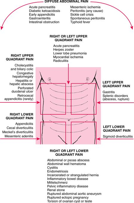 Abdominal Pain | Acute Abdominal Pain: Acute Abdomen and Surgical Gastroenterology ...