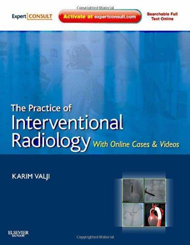 The Practice of Interventional Radiology, with online cases and video: Expert Consult Premium Editio