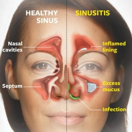 Sinusitis Home Remedies Treatment, Natural Home Remedy Cure, Diet & Causes Of Sinusitis | Home Remedies