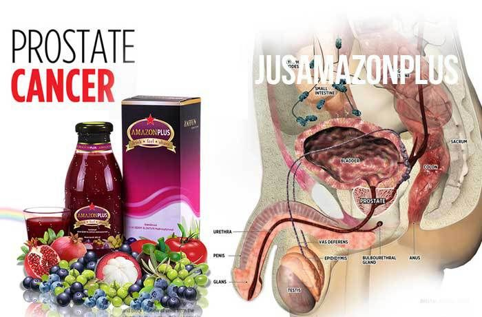 Obat Herbal Kanker Prostat Alami Tradisional