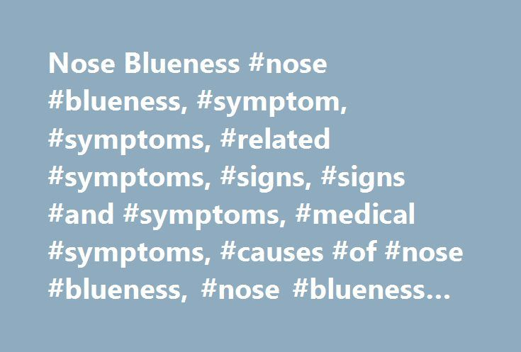 Nose Blueness #nose #blueness, #symptom, #symptoms, #related #symptoms, #signs, #signs #and #symptoms, #medical #symptoms, #causes #of #nose #blueness, #nose #blueness #causes http://new-zealand.remmont.com/nose-blueness-nose-blueness-symptom-symptoms-related-symptoms-signs-signs-and-symptoms-medical-symptoms-causes-of-nose-blueness-nose-blueness-causes/  # Nose Blueness Nose Blueness: Introduction Nose Blueness: Blue discolouration of the nose. See detailed information below for a list of 9…