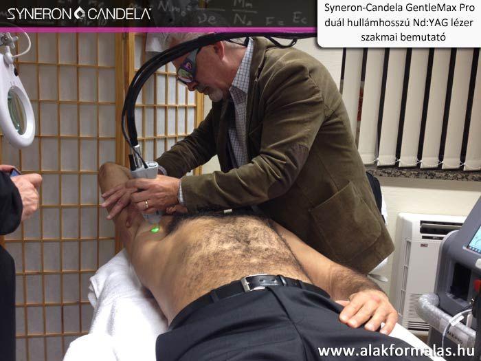 Hamish McNair, a Syneron-Candela vállalat alkalmazás specialistája kezelési bemutatót tart a Candela GentleMax Pro -val #syneron #candela #laser #orvosi #gentlemax #centerkft http://alakformalas.hu/Hirek-erdekessegek/candela-piacnyito-orvosi-rendezvenyrol.html