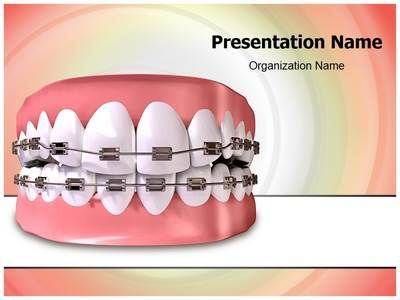 Check out our professionally designed Teeth Braces #PPT #template. Download our Teeth Braces PowerPoint theme affordably and quickly now. This royalty #free #Teeth #Braces #Powerpoint #template lets you edit text and values and is being used very aptly for Teeth #Braces, #dental #health, #dentist, #dentistry, #enamel, #gums and such PowerPoint #presentations.