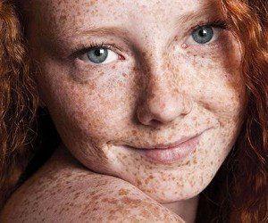 Ученые рассказали, как цвет волос влияет на развитие рака кожи http://womenbox.net/health/uchenye-rasskazali-kak-cvet-volos-vliyaet-na-razvitie-raka-kozhi/  Ученые рассказали, как цвет волос влияет на развитие рака кожи 16 июля 2016 г. Австрийские ученые из Медицинского университета Вены рассказали, как цвет волос влияет на развитие меланомы. Согласно полученным