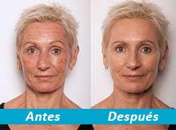 Revelamos el Secreto de la Hermosa Piel sin Arrugas de Sofía Vergara. ¡El producto que está Enloqueciendo a las Actrices de Hollywood!  - Vitamina C y Ácido Hialurónico LiftIntense