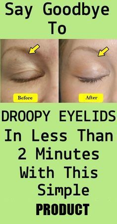 Say Goodbye To Droopy Eyelids In Less Than 2 Minutes With This Simple Product