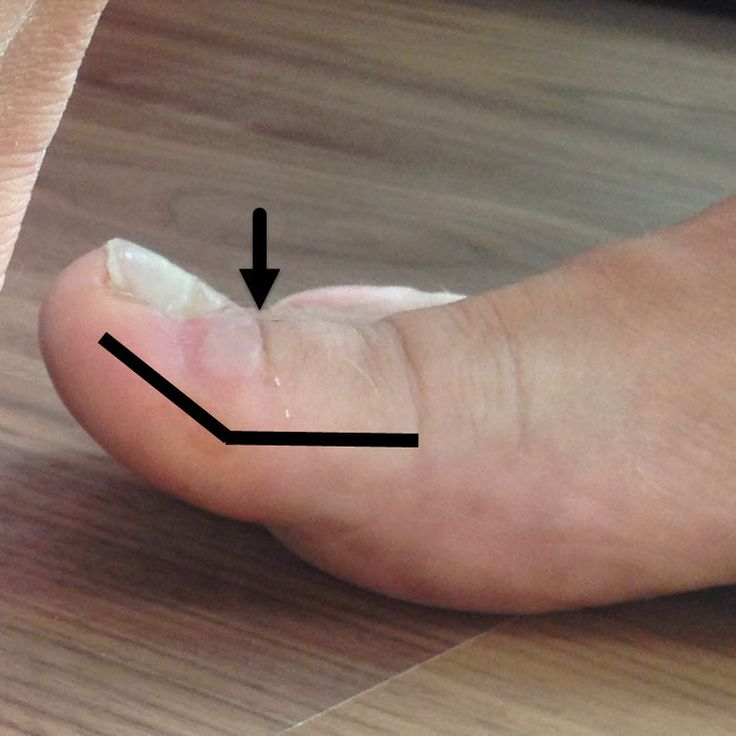 Big toe cocked-up. Note the angle of the toenail. Preventing toe blisters like this and others .