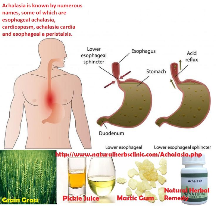 Natural Remedies For Motility Disorders