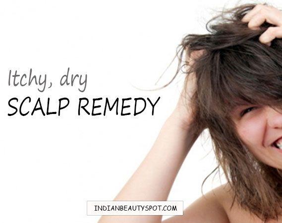 Itchy, Flaky Scalp Remedy - ♥ IndianBeautySpot.Com ♥