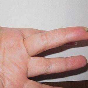 Особая точка на пальце -…