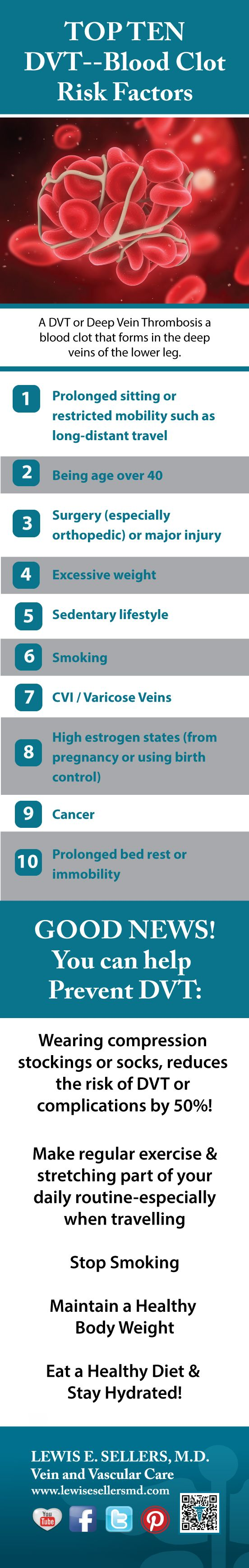 A DVT or Deep Vein Thrombosis a blood clot that forms in the deep veins of the lower leg. Here are 10 DVT #blood #clot #risk factors and some solutions for prevention!  Lewis E. Sellers MD www.lewisesellersmd.com