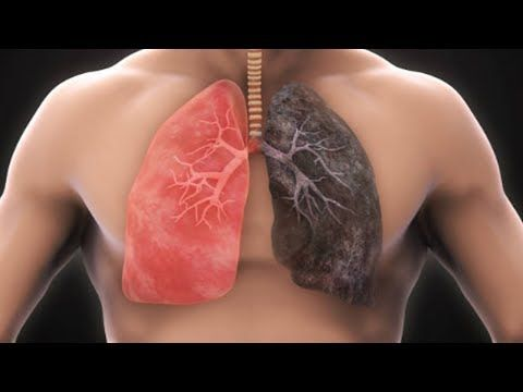 Clean Your Lungs In 3 Days with This Amazing Remedy | Copd ...
