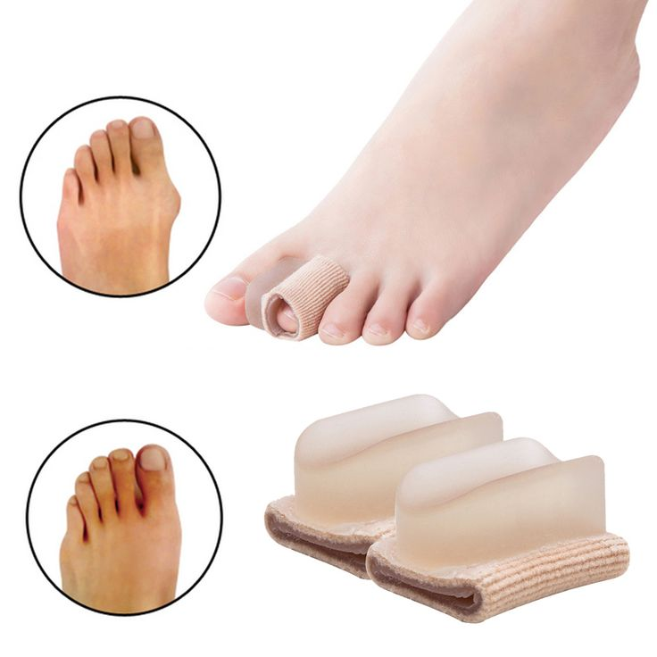 Orthopedics Bunions Foot Care Pedicure Silicon Pad Protection Toe Spreader Hallux Valgus Feet care Tool Health Care 4Pcs Z24302