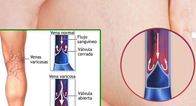 vena-varicosa