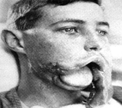 16 Best Images About Wwi Wounds Und Plastic Surgery On