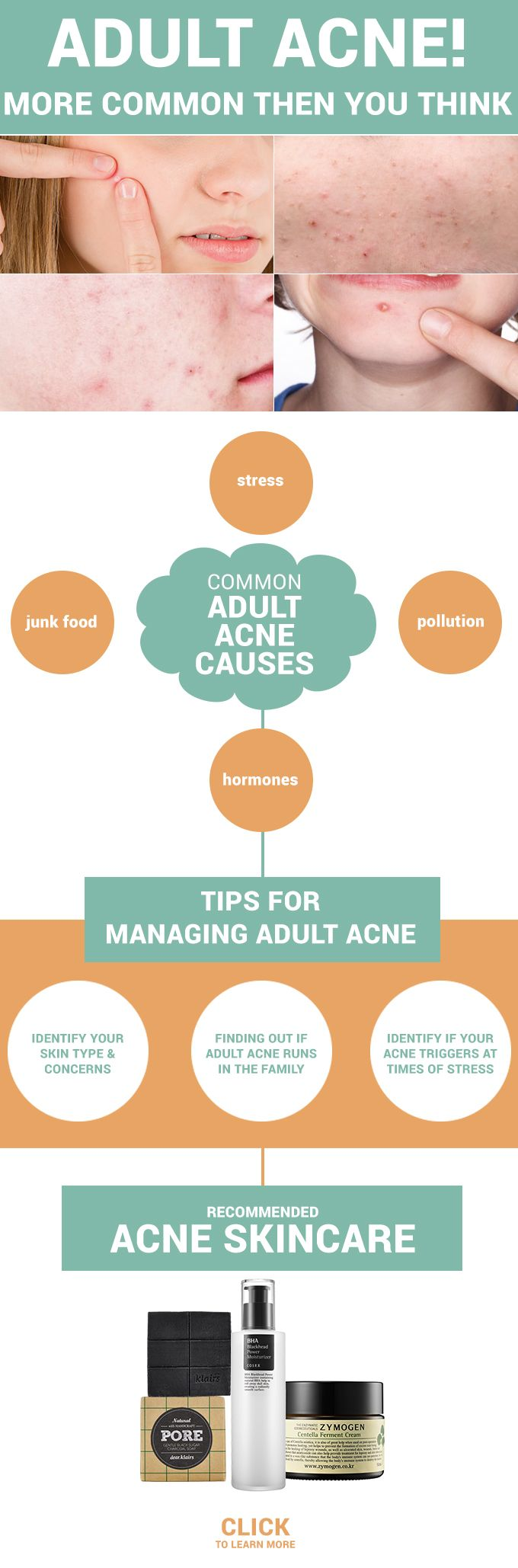 Are you 20+ and still suffering from acne? Well believe it or not, adult acne is affecting most of us, lets dissect the top adult acne causes and solve it! - http://www.wishtrendglam.com/adult-acne-causes/ #acne #adult #adultacne #pimples #skin #skincare #trouble #tips #help #advice
