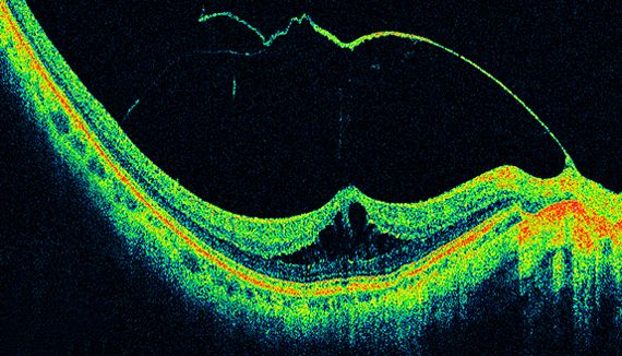 What is OCT? - Ophthalmic Photographers Society #Ophthalmology #OphthalmicPhotography