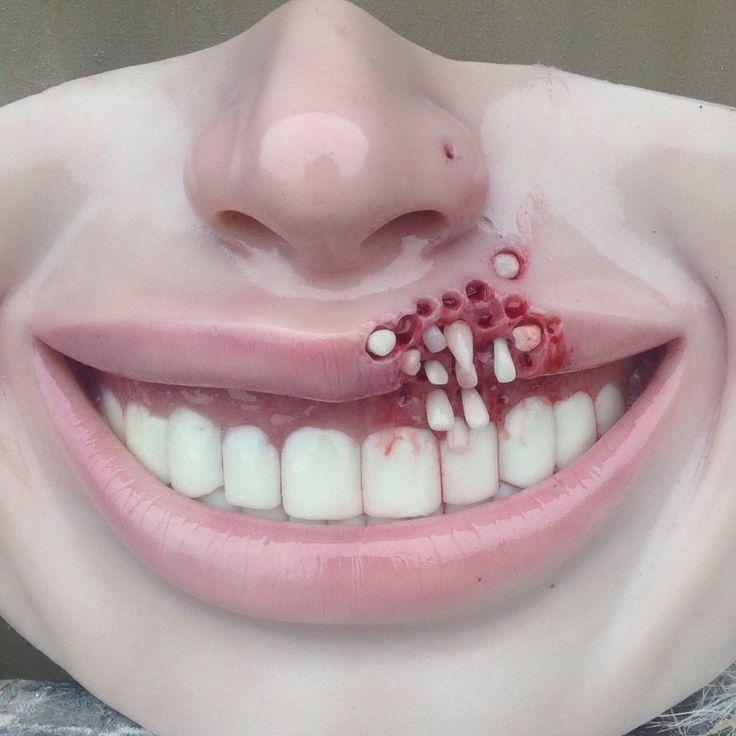 Extra teeth