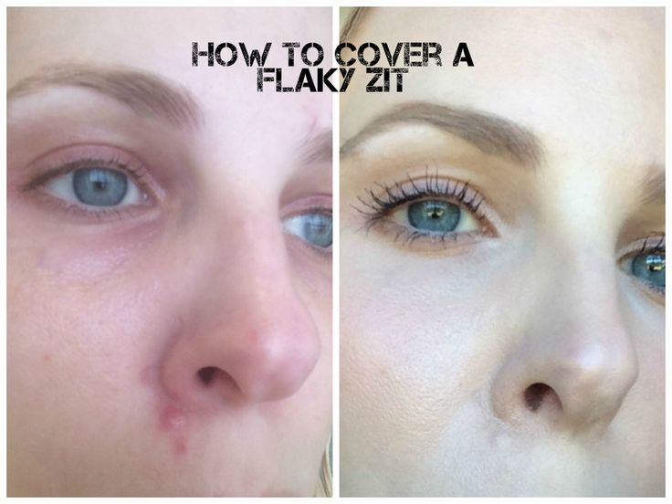 How To Cover A Pimple With Makeup - Mugeek Vidalondon