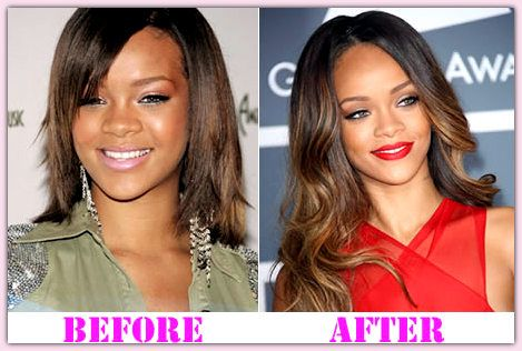 Rihanna Plastic Plastic Surgery Before And After Rihanna Plastic Surgery #Rihannaplasticsurgery #Rihanna #poloneznews