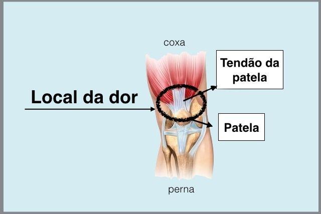 A tendinite no joelho é localizada na parte da frente desta articulação, na região logo acima da patela. Veja o local exato da dor e como deve ser...