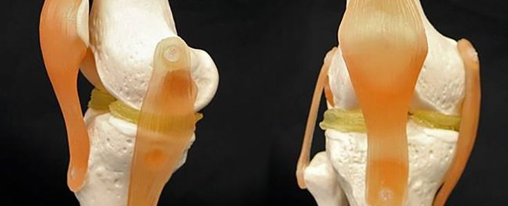 New cartilage like material that can be 3D printed http://ift.tt/2pkBmyt