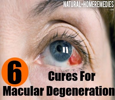 6 Natural Cures For Macular Degeneration