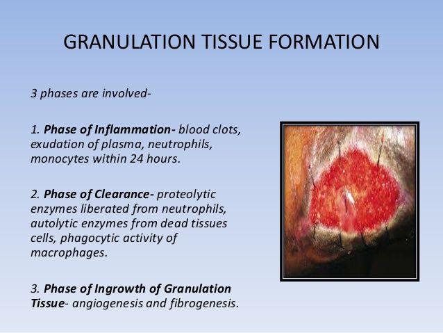 granulation tissue   Wound healing