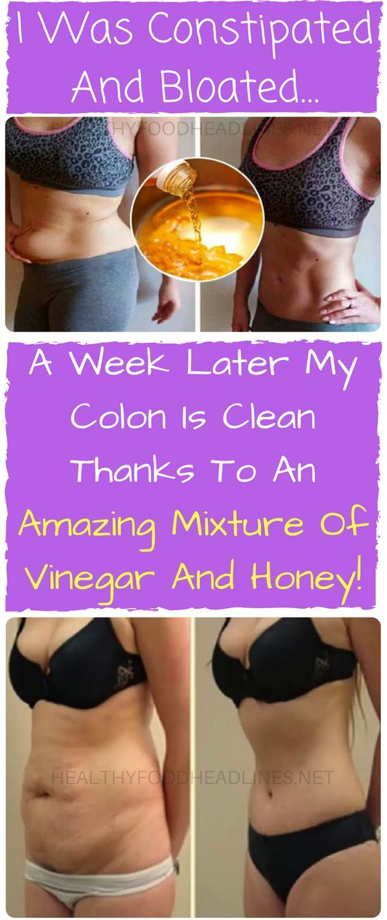 I WAS CONSTIPATED AND BLOATED… A WEEK LATER MY COLON IS CLEAN THANKS TO AN AMAZING MIXTURE OF VINEGAR AND HONEY!