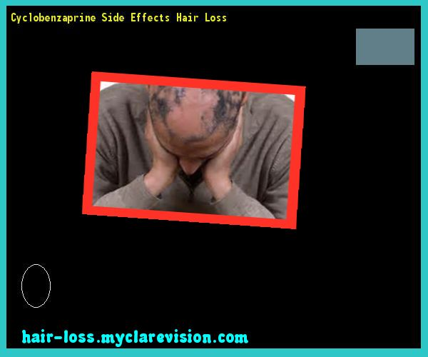 Cyclobenzaprine Side Effects Hair Loss 105554 - Hair Loss Cure!