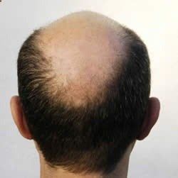 Home Remedies for Baldness - Natural Treatments  Cure For Baldness | Search Home Remedy