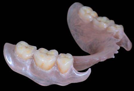 Nel caso vi manchino tutti i #denti e abbiate problemi con l'#implantologia, affidatevi alla #protesi dentale rimovibile, la classica dentiera.