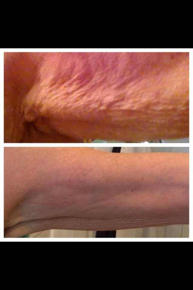 I don't know of any other product that can do this. What are you waiting for? Try Nerium Firm! There's a 30 day money back guarantee! www.Mjones824.Nerium.com