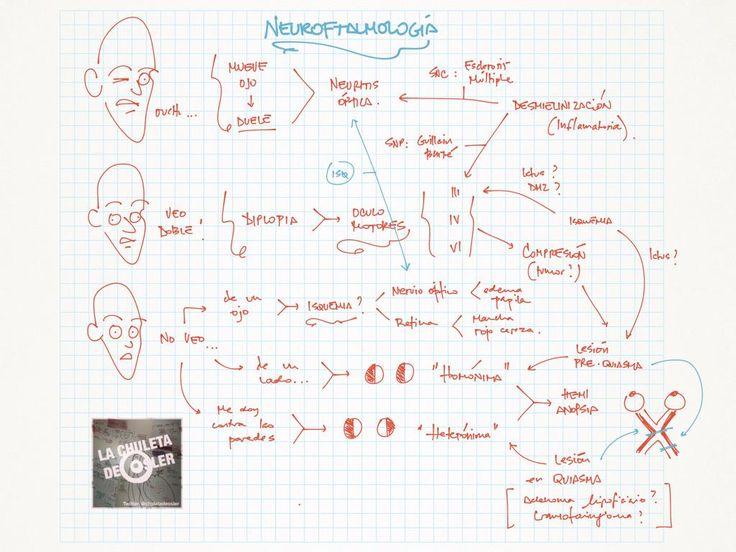 Neuro oftalmología: Ultraresumen, orientacion diagnostica #mir #eir #pir #enarm