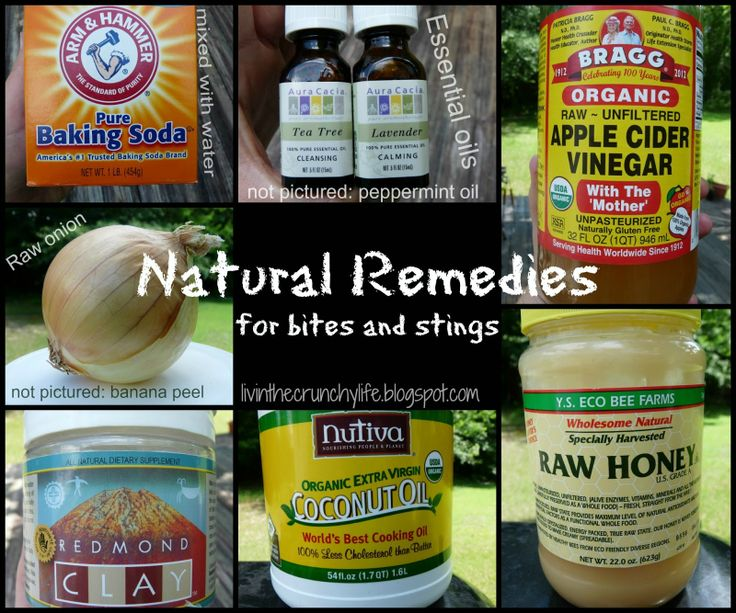 Natural Remedies for Bites and Stings #naturalremedies #crunchylife
