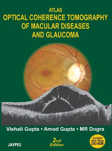 Atlas Optical Coherence Tomography of Macular Diseases and Glaucoma 2nd Edition Pdf Download e-Book