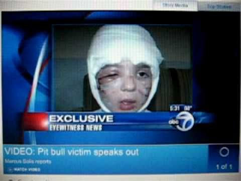 5 year old Frankie Flora attacked by pit bull, 1000 stitches