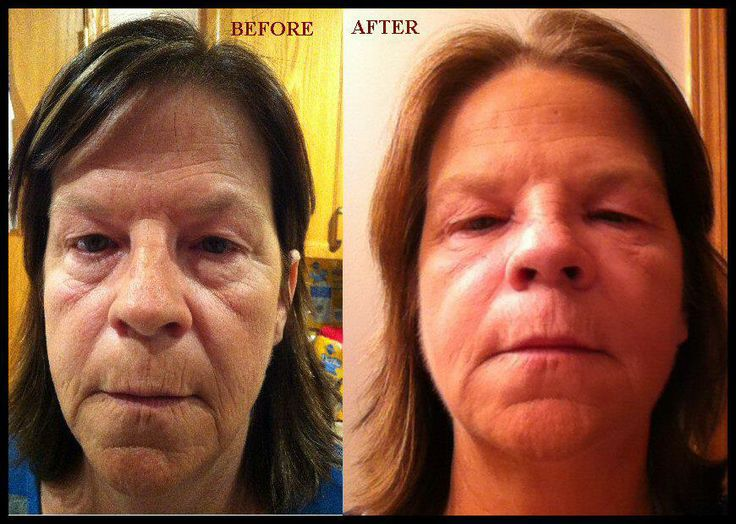 Facials and Facial creams used after a devasting burn to the face which in the end caused a severe face drop Need to get rid of wrinkles and uplift your face contact me : wildwrap@shaw.ca or my Itworks Website wildwrap.com Or  www.wild-eyes.weeble.com
