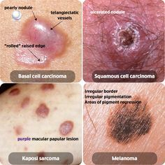 Basal Cell Carcinoma vs. Squamous Cell Carcinoma vs. Kaposi Sarcoma vs. Melanoma Rosh Review